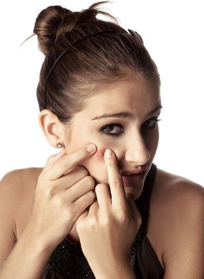 acne tipos e tratamentos