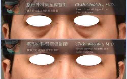 眼袋-%25E7%259C%25BC%25E8%25A2%258B2019-500