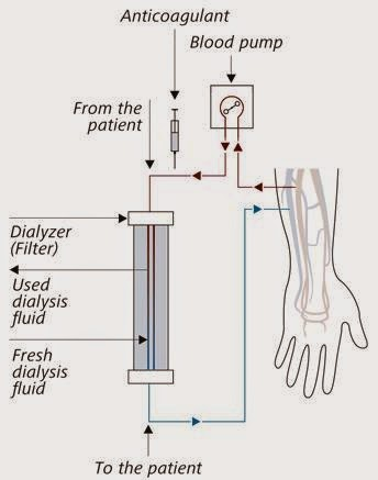 FRESENIUS 5008 DIALYSIS MACHINE MANUAL