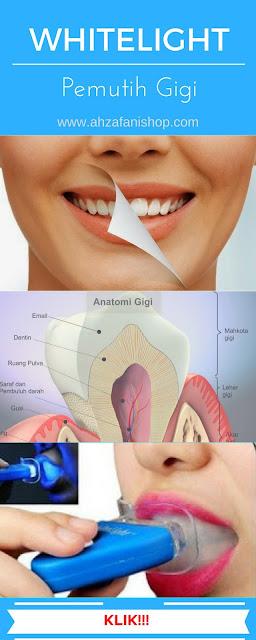 Whitelight Cara Memutihkan Gigi dengan Cepat Secara Alami