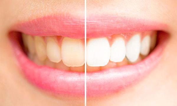 Tutorial Sehat Memutihkan Gigi Secara Alami