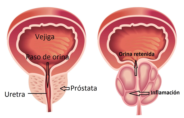 inflamación de la próstata en niños 2 años