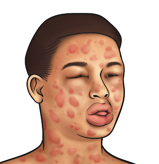 NCP Anaphylaxis