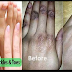 3 Super effective tricks to remove darkness from finger joints – get Baby soft hands in 5 minutes