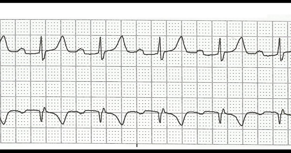 Float Nurse: Practice ECG Rhythm Strips 129
