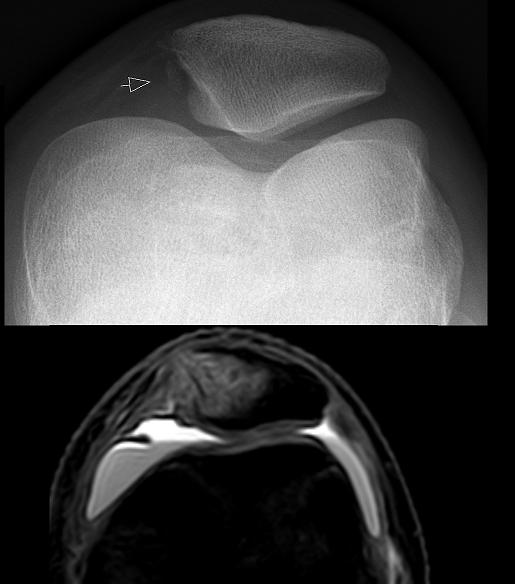 HIperpresión externa. Condromalacia rotuliana. Imagen resonancia