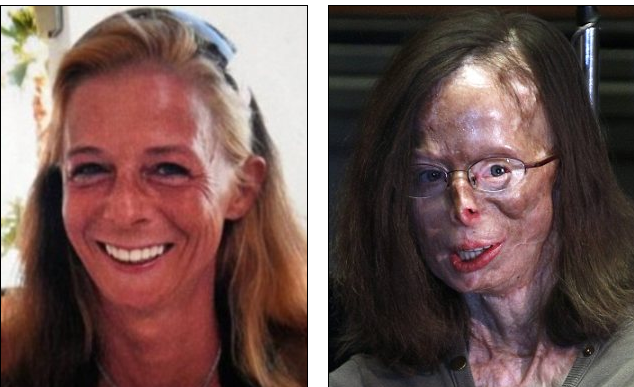 Woman wakes up from coma with 70% of her body covered in