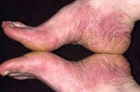 Untuk menghilangkan penyakit gatal eksim menahun di kaki