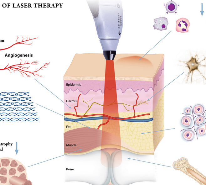 the different types and intensities of lasers Types of lasers and what your practice needs: laser dentistry made easy and profitable.