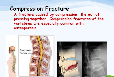 fracture type,complication of fracture,first aid fracture,surgery for fracture
