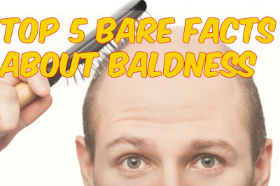 Top 5 Bare Facts About Baldness