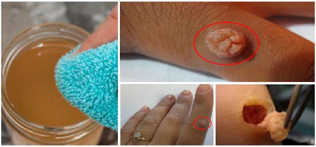Bagi Anda yang Punya Tumor Fibroid/Kulit Berlebih di Tubuh, Begini Cara Menghilangkannya