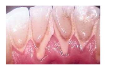 Plaque dentaire et tartre