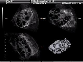sel telur yang gagal matang dan ovulasi/lepas dari ovarium akan terlihat pada USG transvaginal.