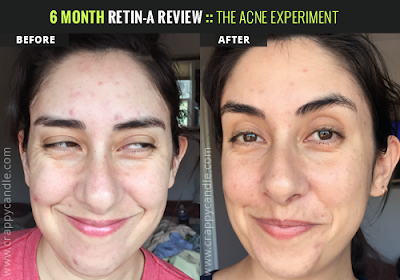 0.05% Tretinoin Cream Before/After :: The Acne Experiment