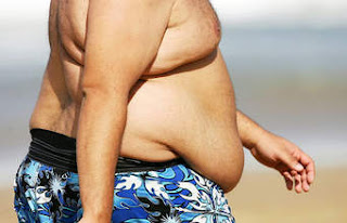 What Causes Overweight and Obesity?