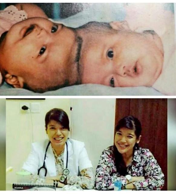 Masyaallah! Alami Operasi Kembar Siam 31th Lalu, Yuliana dan Yuliani Kini Jadi Orang Sukses