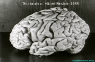 Albert Einstein's Brain