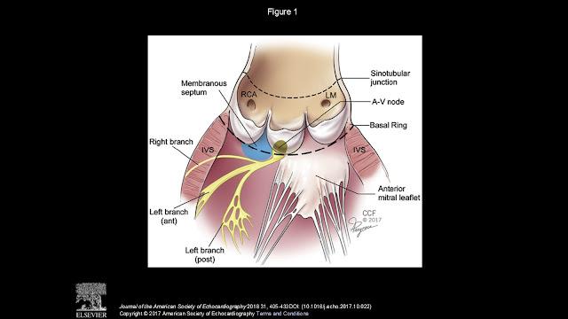 Prolapso mitral revisado | ECHOVAR: ECO DEL DIA