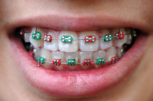 braces singapore cost