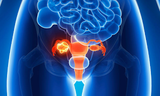 what are the signs of ovarian cancer