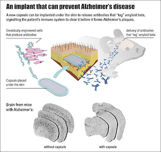 Scientists Develop Implant That Turn Immune System Against Alzheimers