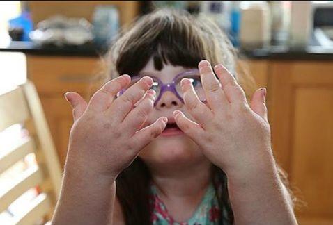 Artritis, también una enfermedad de niños y jóvenes