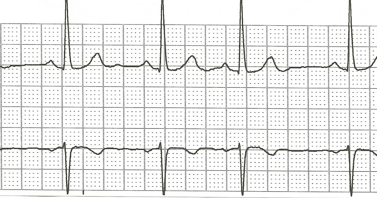 Float Nurse: Practice EKG Rhythm Strips 93