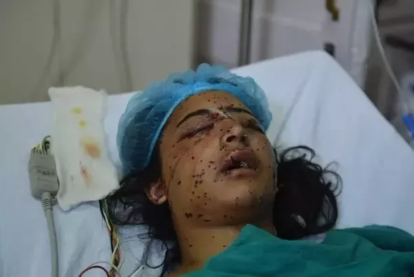 a girl Victim of pellet gun of Indian Army
