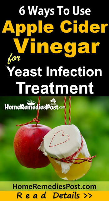 Apple Cider Vinegar For Yeast Infection, Apple Cider Vinegar and Yeast Infection, How To Get Rid Of Yeast Infection, Home Remedies For Yeast Infection, Vaginal yeast Infection, How To Use Apple Cider Vinegar For Yeast Infection, Is Apple Cider Vinegar Good For Yeast Infection