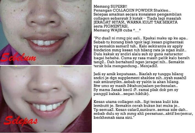 Image result for collagen dan jeragat