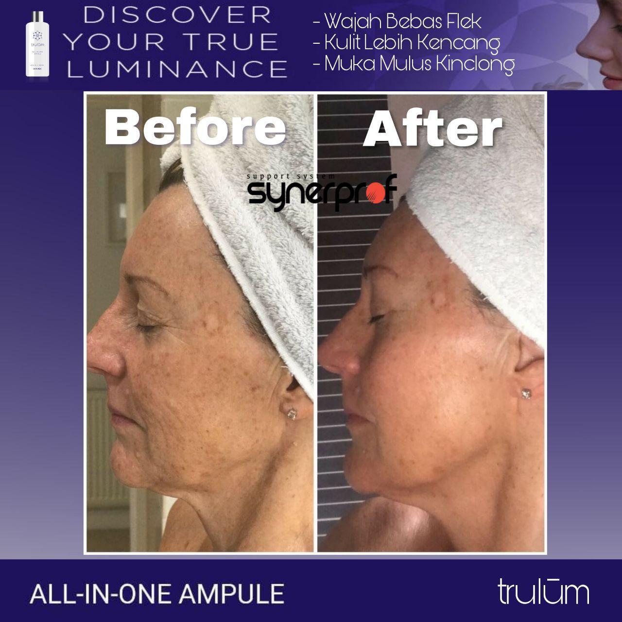 Jual Trulum Skincare Synergy Di Tuminiting WA: 08112338376