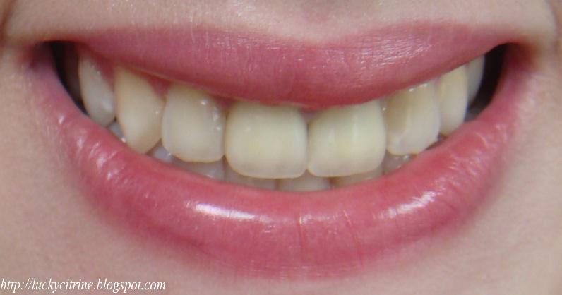 Lucky Citrine My New Teeth E Max All Porcelain Crowns