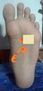 Titik refleksi untuk mengatasi pembuluh darah tersumbat