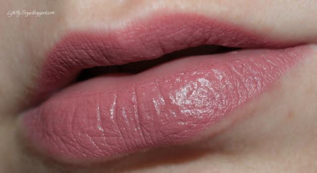 После уколов гиалуроновой кислоты в губы