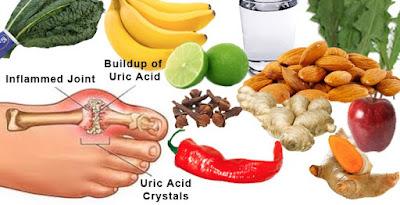 Daftar Makanan Untuk Penderita Asam Urat