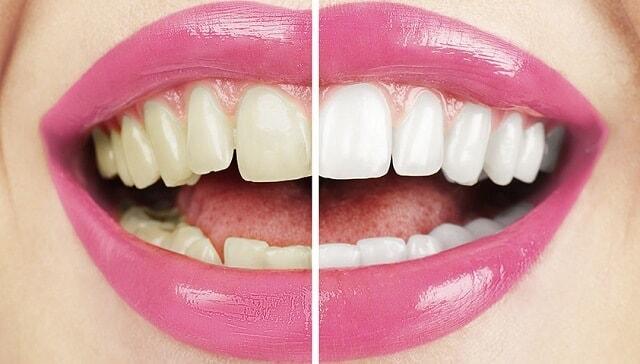 Diş beyazlatma bleaching ve detayları