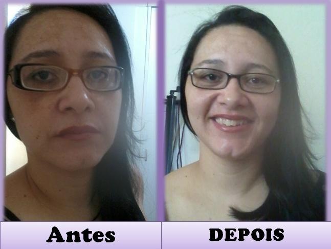 Fabuloso Tratamento contra manchas e espinhas utilizando o ácido retinoico  GR84