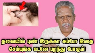 Sore on Scalp – Home Remedies