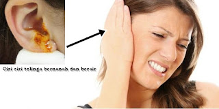 obat herbal untuk telinga bernanah dan berair yang aman
