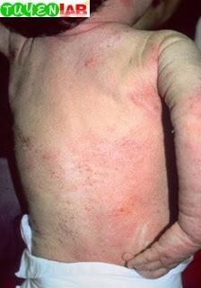 Fig. 5.19 White dermatographism.