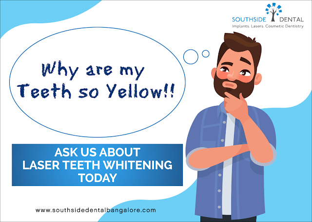 https://www.southsidedentalbangalore.com/teeth-whitening