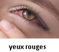 Comment guérir des yeux rouges