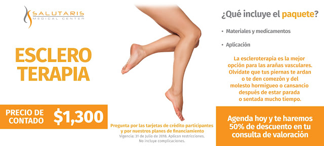 Paquete Tratamiento Escleroterapia telangiectasia Arañas Vasculares Varices Precio Guadalajara Mexico