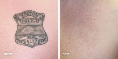 Latest Updates On Tattoo Removal