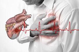 Serangan jantung akibat kolesterol tinggi