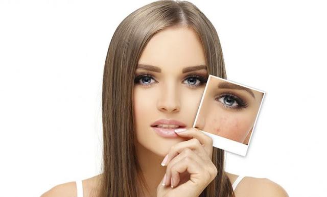 Comment se débarrasser des cicatrices avec des remèdes naturels