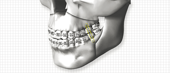 Self Two Jaw Surgery For Better Recovery After Surgery