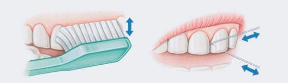 berus gigi dan floss gigi kencing manis