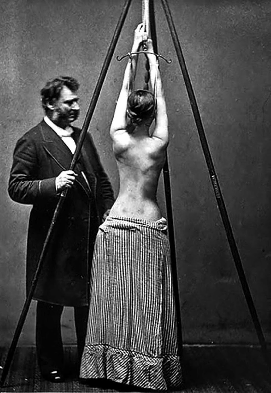 Dr. Lewis Albert Sayre observes the change in the curvature of the spine as a patient self-suspends herself prior to being wrapped in a plaster of Paris bandage as part of her scoliosis treatment circa 1850-1900.